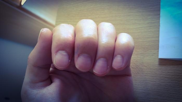 Stripy finger nails